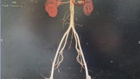 """把腎挪個窩,貴醫附院成功施行首例""""自體腎移植術"""""""