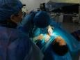 贵医附院心内科团队在省内率先实施全球体积最小的ICD植入术